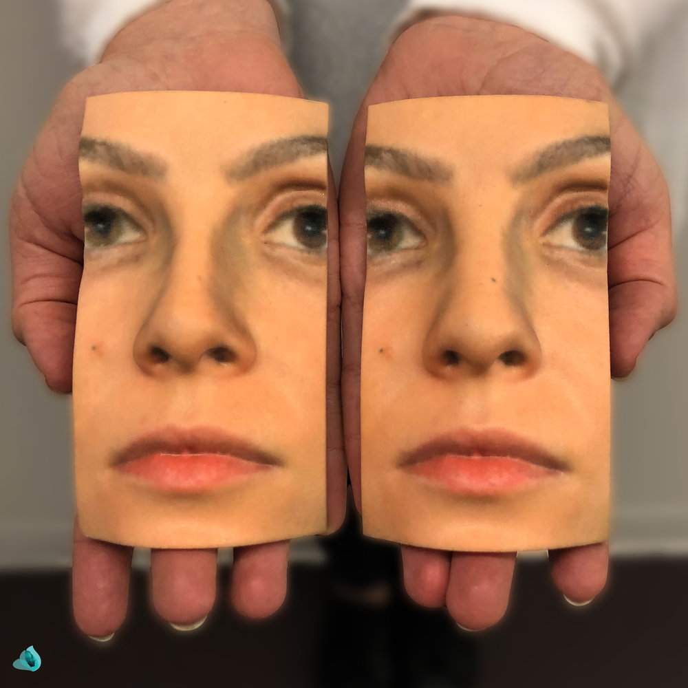 SIMULATION & BASELINE RHINOPLASTY MODELS