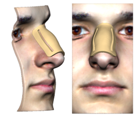 Patient-specific marking templates for rhinoplasty   streamline dorsal hump removal by increasing incision precision.
