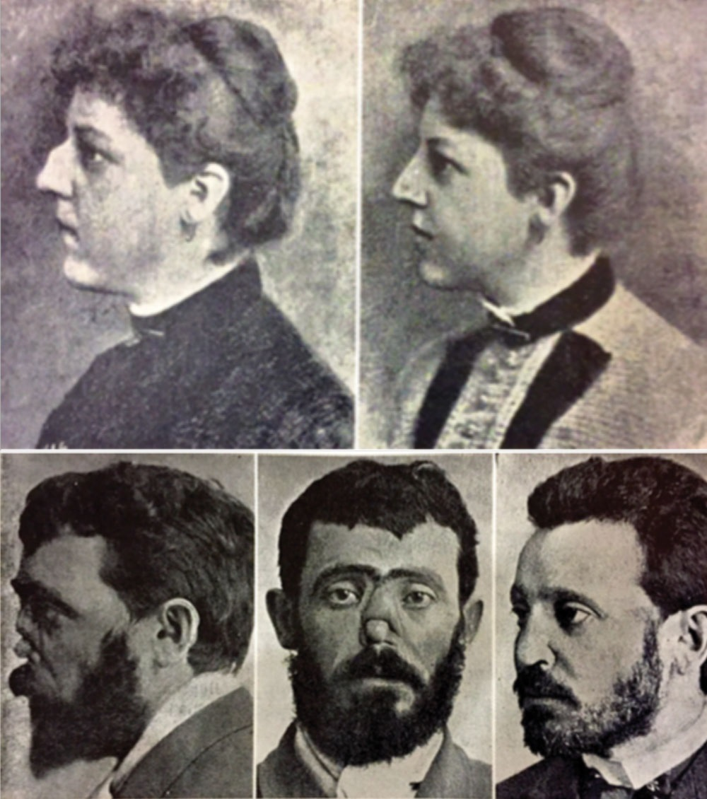 A collection of the earliest-known photographs used in plastic surgery planning and documentation (   Source   ).