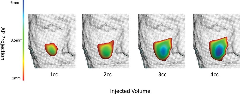 3D imaging enables scientists to identify and plan how to repair soft-tissue volumetric deficits, among other issues (   Source   ).