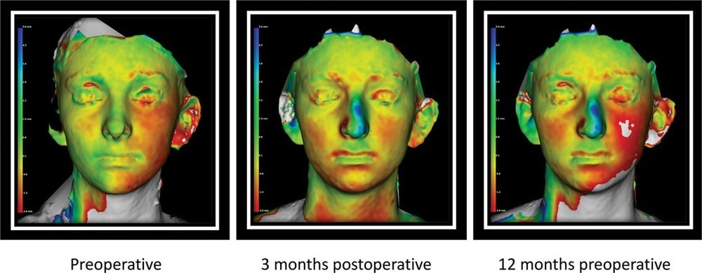 Postoperative soft-tissue monitoring is possible with 3D technology (   Source   ).