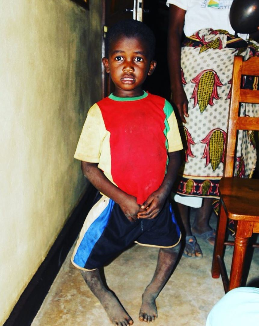 Ezra, a young boy from Madagascar who suffered from rickets as a result of chronic vitamin D deficiency