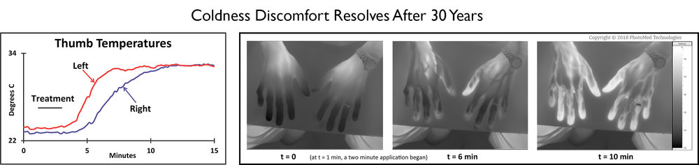 Thermal imaging revealed that hands can warm and resume normal comfort after 30-years of coldness discomfort. This case demonstrated that a single treatment can prompt the release of a year's long experience of coldness.
