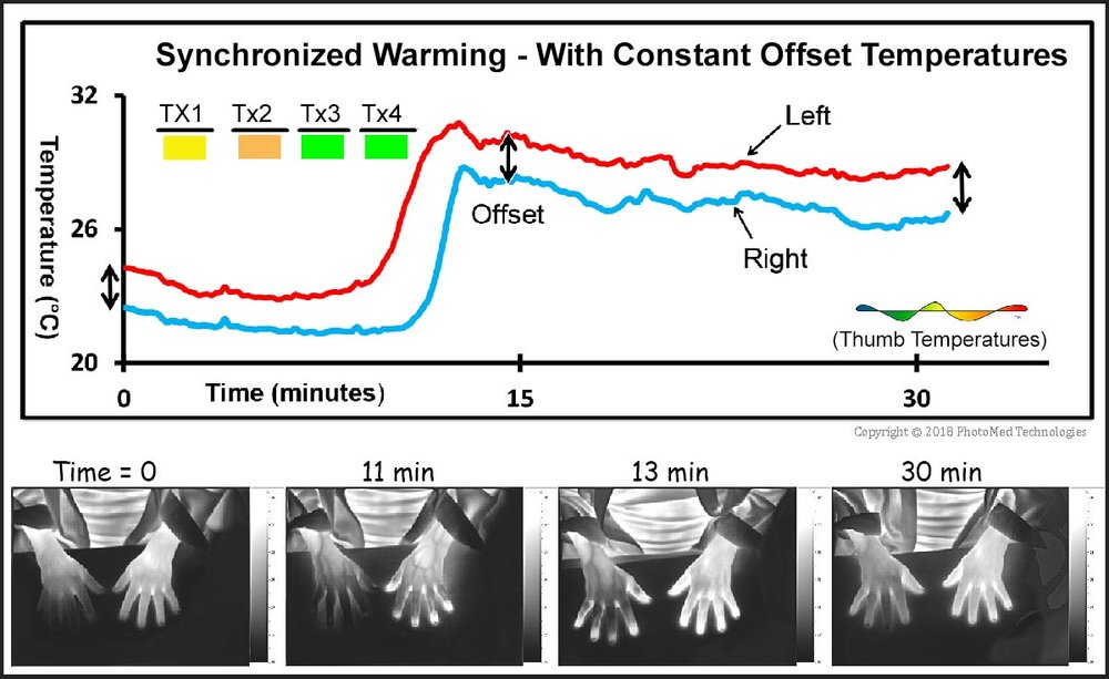 This volunteer's response demonstrates how adjusting therapy by wavelength can efficiently achieve outcomes that would otherwise occur only rarely. The parallel temperatures reveal exquisite coordination among sensing and temperature control functions.