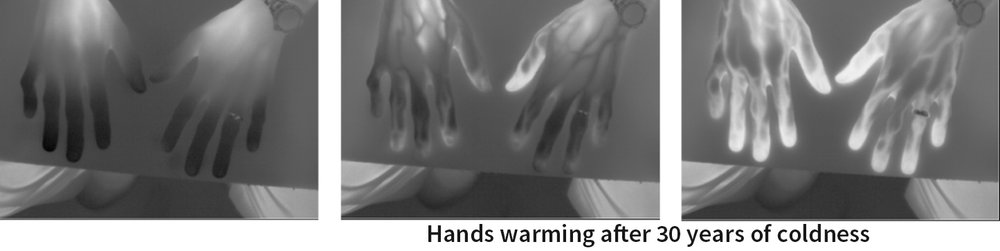 Figure 1  - Thermal imaging shows a warming response over a 10-minute period to a single stimulation by PhotoMed's therapy. The body, not the therapy, determines the timing and magnitude of the return toward normal function. Lighter gray is warmer.
