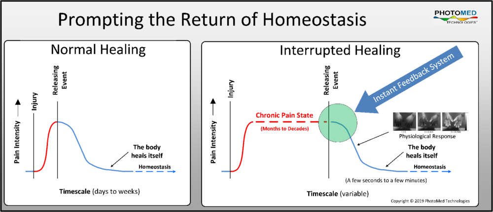 Figure 4  – The operator uses PhotoMed Technologies   Vari-Chrome® Pro   or the   Instant Feedback System  ™ to prompt and record the releasing event between a chronically impaired state and homeostasis. The evidence for homeostasis accrues while improved functions persist after therapy ends.