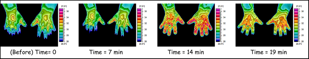 Figure 1  - Colorized temperatures of hands warming. Susan (not her real name) had CRPS with painfully cold hands. Three two-minute treatments with PhotoMed's new device prompted warming as if on cue. The operator observed warming that began at about minute 10. Additional treatments were not needed for the visit.