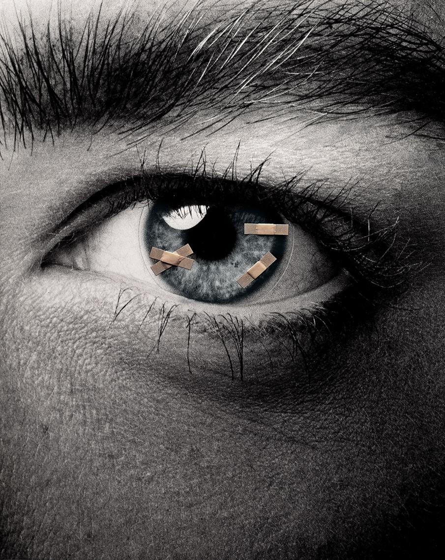 Bandaid-eye_r1.jpg
