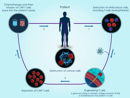 Figure 2:   CAR T-cells are made of T-cells separated from a patient's blood. They are engineered to express CAR, and reinfused into the patient to target ALL cells.