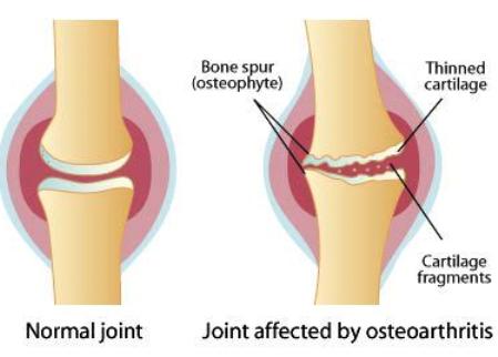 viêm xương khớp và mô sụn biến đổi hình dạng
