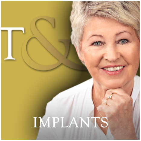 Implantsg