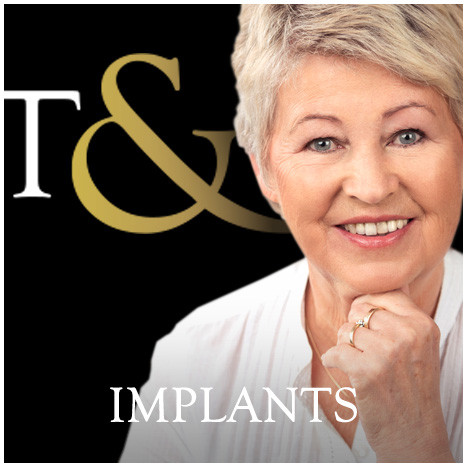 Tanyard and Golding implants black.jpg