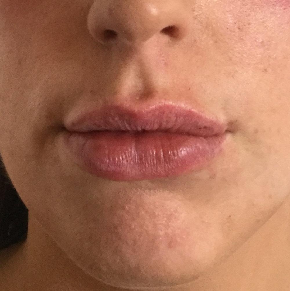 Lip_fillers-02.jpg