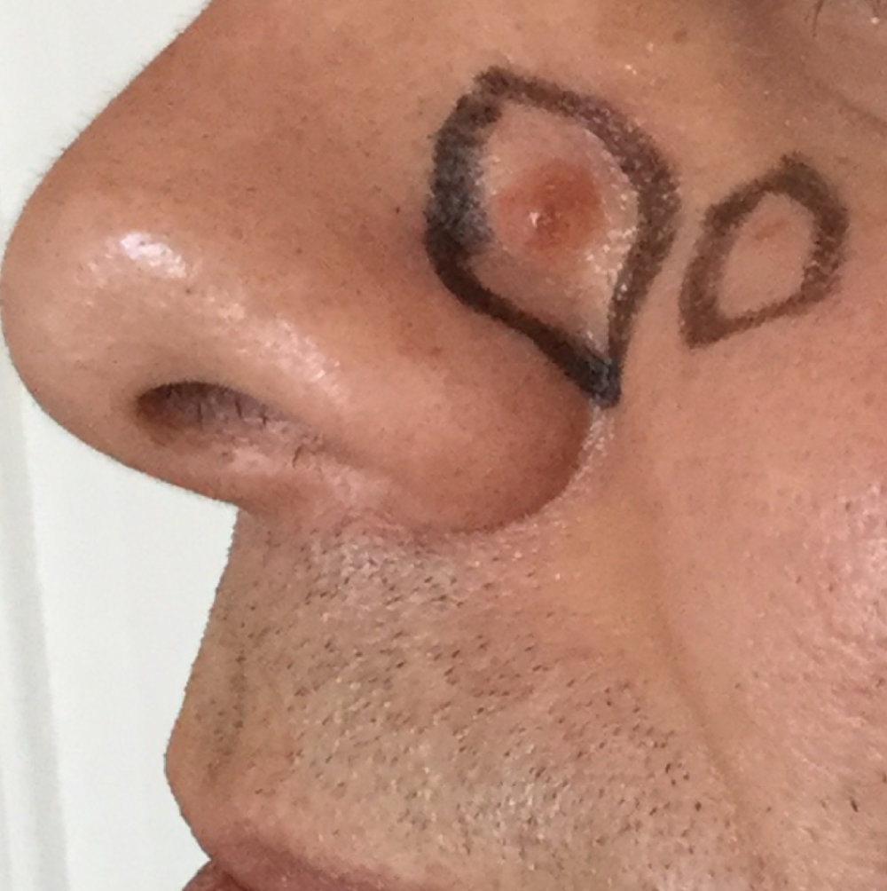nose-01.jpg