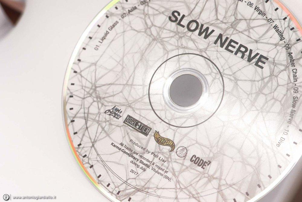 ↑ Fig.9  Dettagli CD.