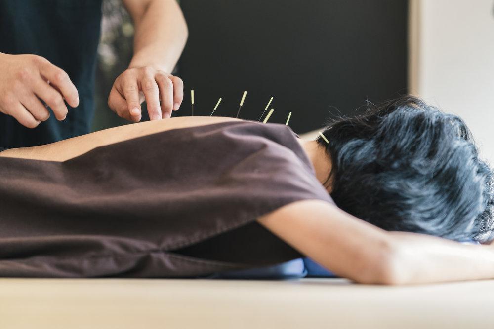 acupuncture-treatment.jpg