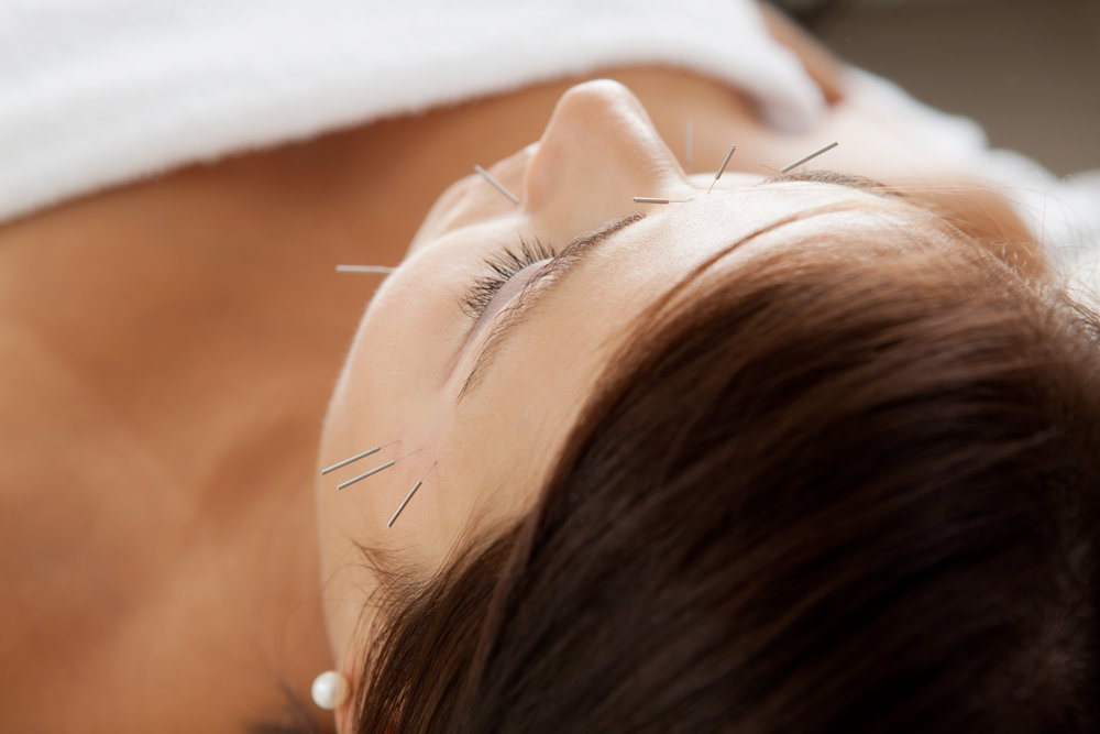 cosmetic-facial-acupuncture-treatment.jpg