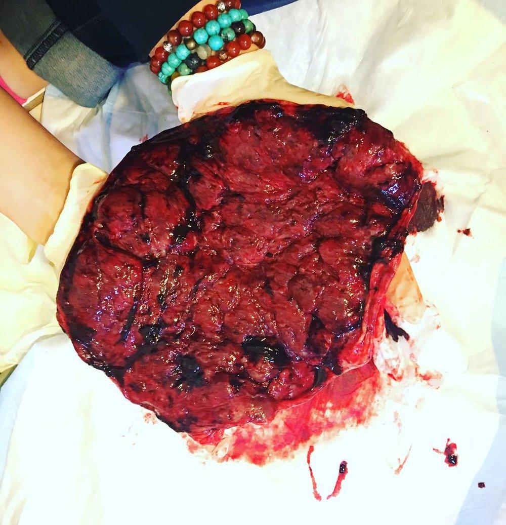 placenta3.jpeg