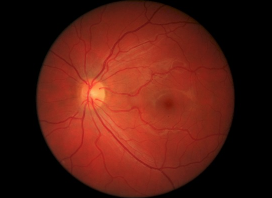 UK Charities partners with BenevolentAI to cure blindness (AMD) | Age-related macular degeneration