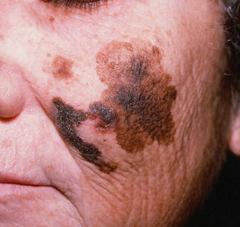 image-gallery-lentigo-maligna-melanoma.jpg