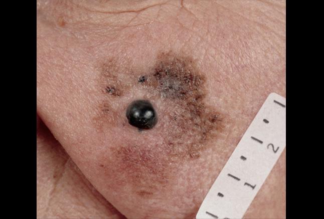 FCASCD_lentigo_maligna_melanoma.png