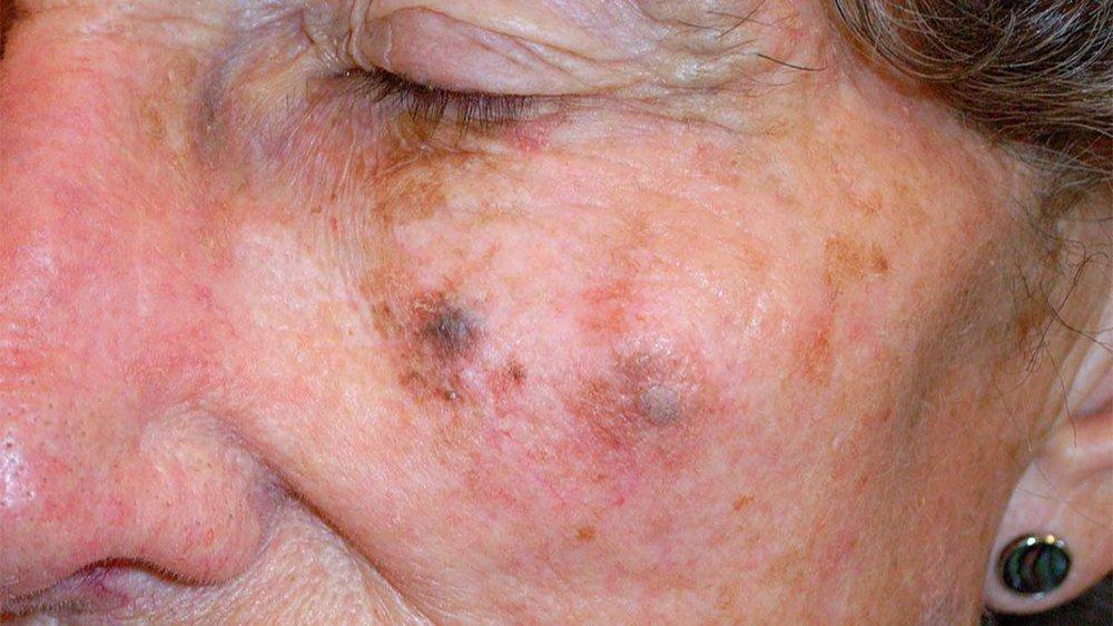 2308-mild_lentigo_maligna_melanoma-1296x728-slide2.jpg