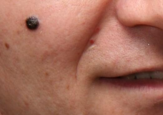 Nodular-Melanoma-Dermatology.jpg