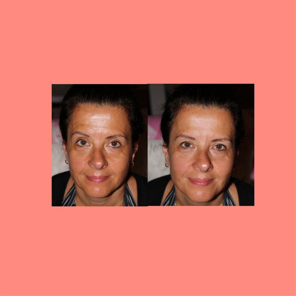 My bff, Despina, before and after 5 minutes of cupping by me! No filters or retouching