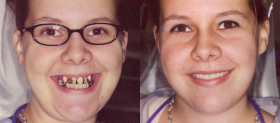 Cosmetic Dental Makeover - Before and After