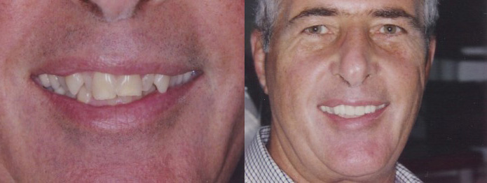 Cosmetic Dental Makeover