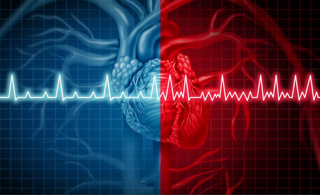How Do Stages of Atrial Fibrillation Affect Treatment? — Dr