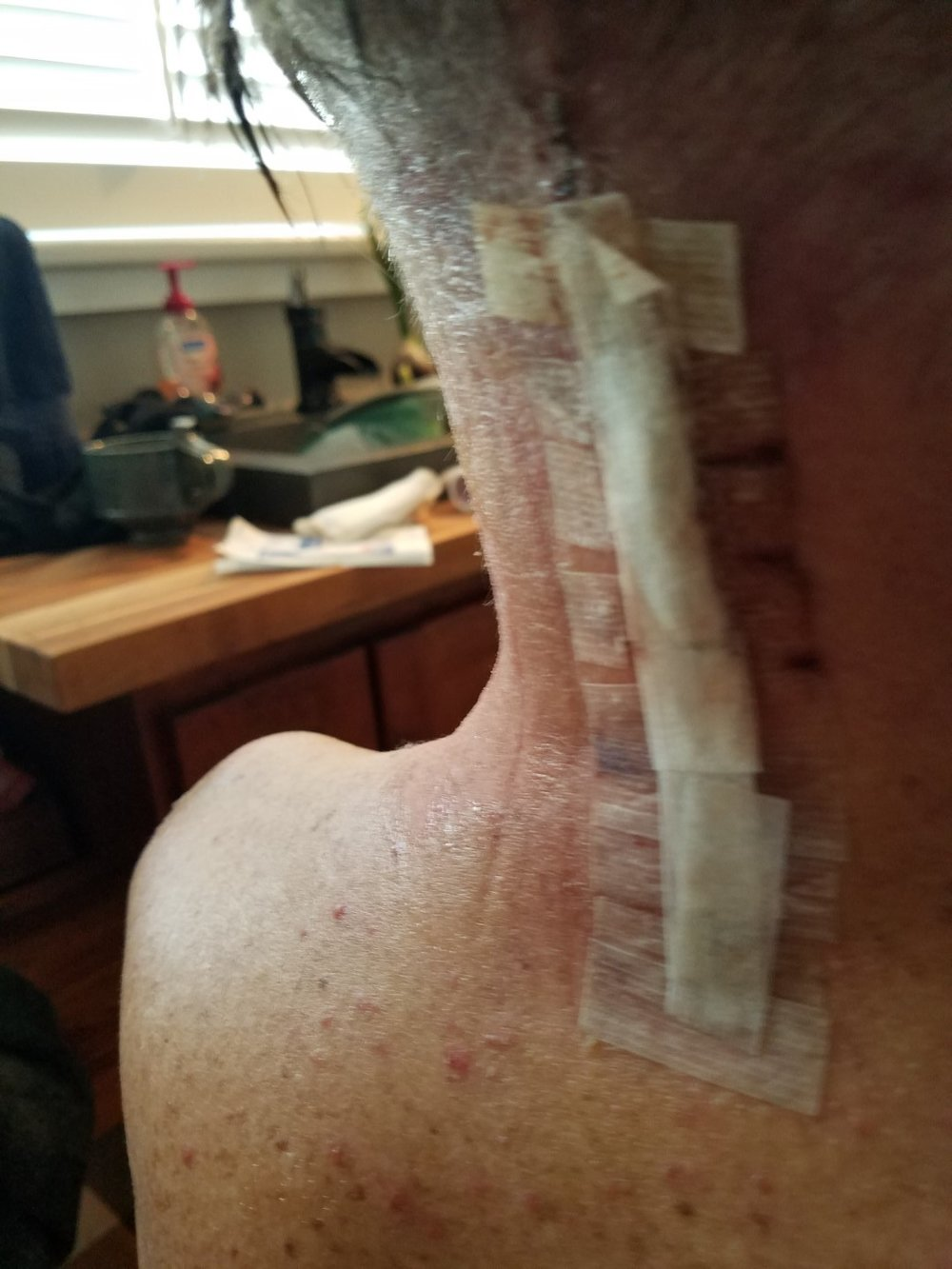 03 - The site of the incision.jpg