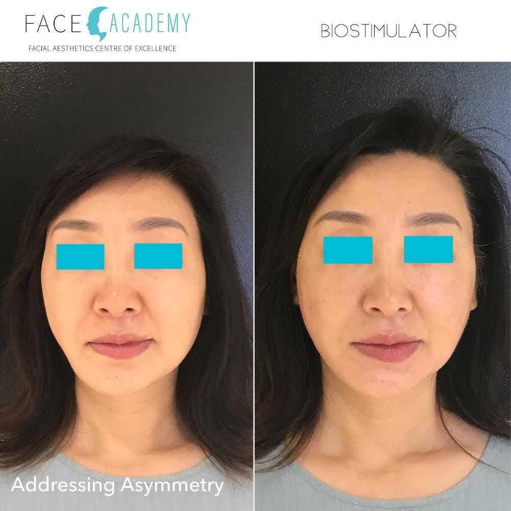 Anti-wrinkle treatments, Dermal fillers, Facial threading, Edith St medicentre, Wynnum, Australia.jpg