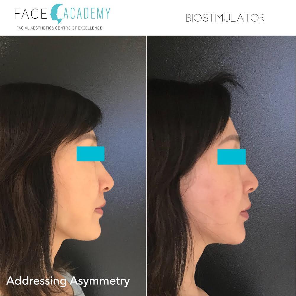Cosmetic medicine, Anti-wrinkle treatments, Dermal fillers, Facial threading Edith St medicentre, Wynnum, Australia.jpg