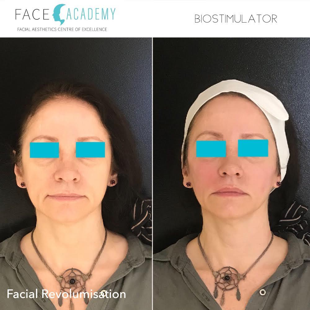 Facial revolumnisation, Cosmetic medicine, injectables, fillers, Edith St medicentre, Wynnum, Australia.jpg
