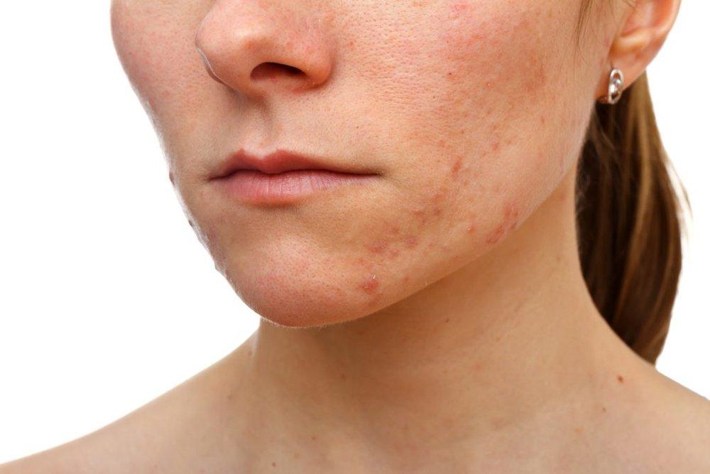 acne-inflammation-1024x683.jpg