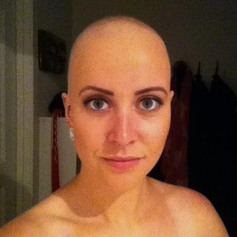 Foto: Privat fra 2013, eneste skalla- bildet jeg tok av meg selv