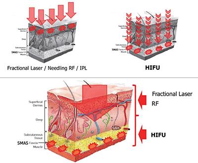 hifu-vs-laser.jpg