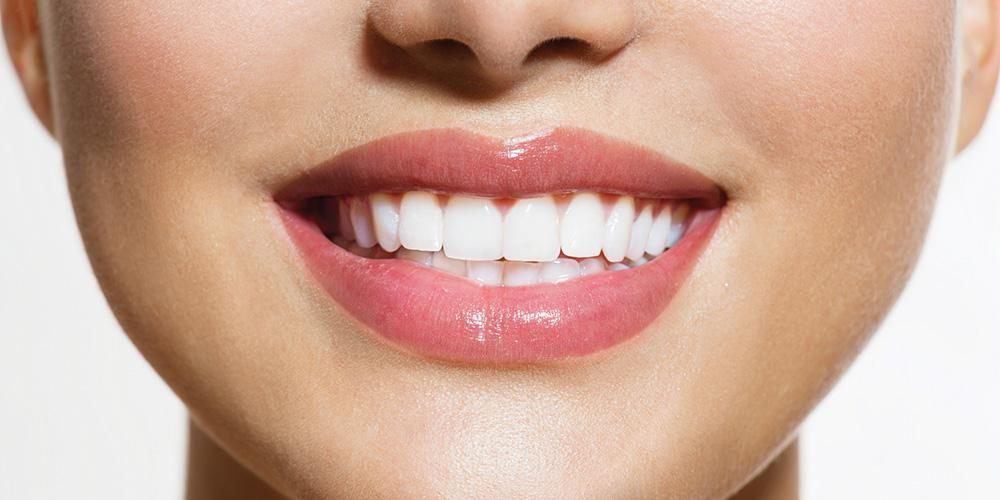 Teeth-Whitening-banner.jpg