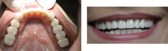 Also, on the lower right and left she had missing teeth where implants were placed and then restored with crowns and bridges.