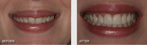 "This patient came in saying that her teeth were ""too small"" and that she needed veneers to make her teeth look longer. She had braces as a teenager but they were unable to completely close the spaces between her front teeth and she had to have some bonding to close the gaps. Still her teeth appeared too small but this was not because they were too short because as you can see they follow the lip line which is what they should do. Instead her teeth appeared too small because the gum tissue was covering up too much of the teeth. This often happens when teeth are moved with braces. Patients are sometimes left with a ""gummy smile"".Treatment Included: Gum Recontouring to remove the excess gums covering up her natural tooth. Then Veneers were done on the upper 8 front teeth to close the gaps and give her a beautifull smile. This patient was so impressed that she left her job in a law firm to go back to school to be a dentist."