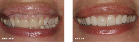 This patient had old crowns on her 4 front teeth that were yellow and the 2 front crowns were too wide and looked too square because there was too much gum tissue covering her natural teeth. This gave them a short, square appearance.Treatment Included: Gum Recontouring around the 2 front teeth to lengthen them and Veneers on the upper six front teeth. Doing 6 teeth instead of 4 allowed us to even out the sizes of the 6 front teeth and give her a more naturally beautiful smile. As you can see the contour of her lip also improved once the teeth and gums were more naturally shaped without doing anything to the lip itself.