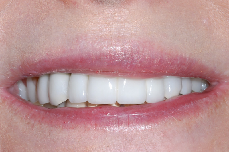 Removable Partial Denture