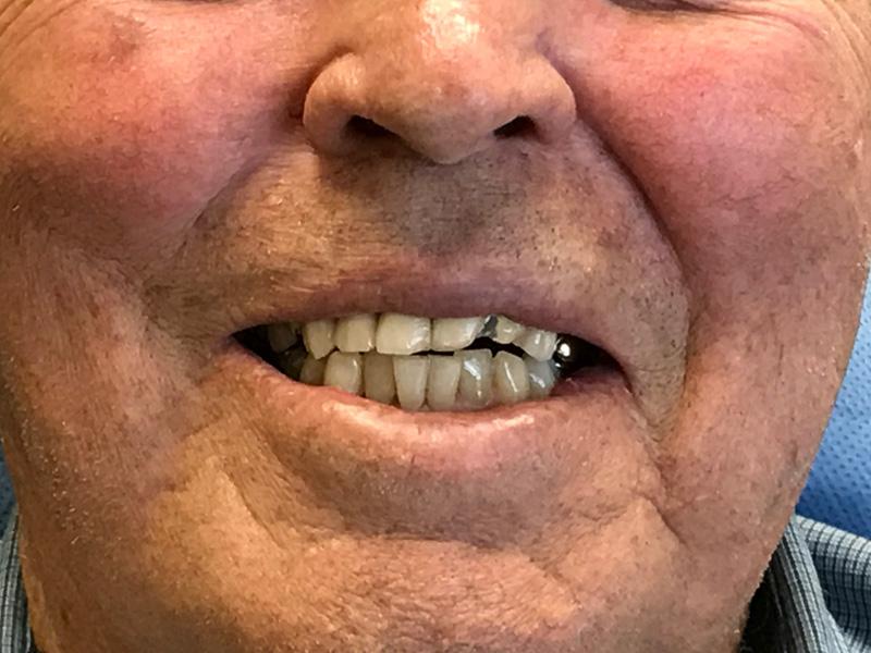 Pre Smile