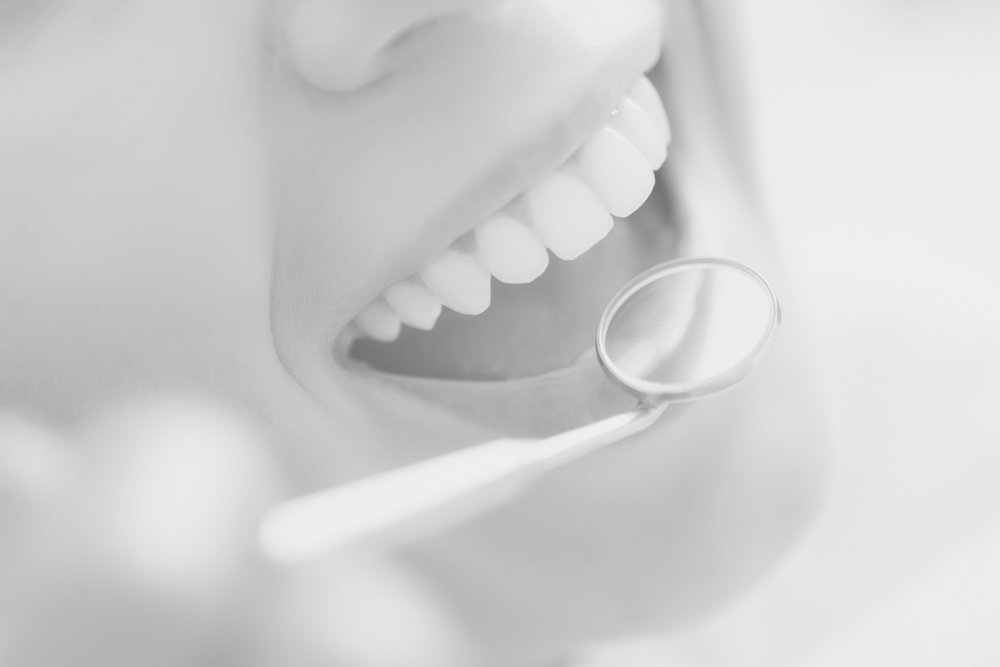 - Non-IMplant Dental Services