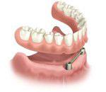 Bar retained implant overdenture.jpg
