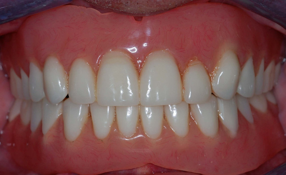 implant overdenture-09.jpg