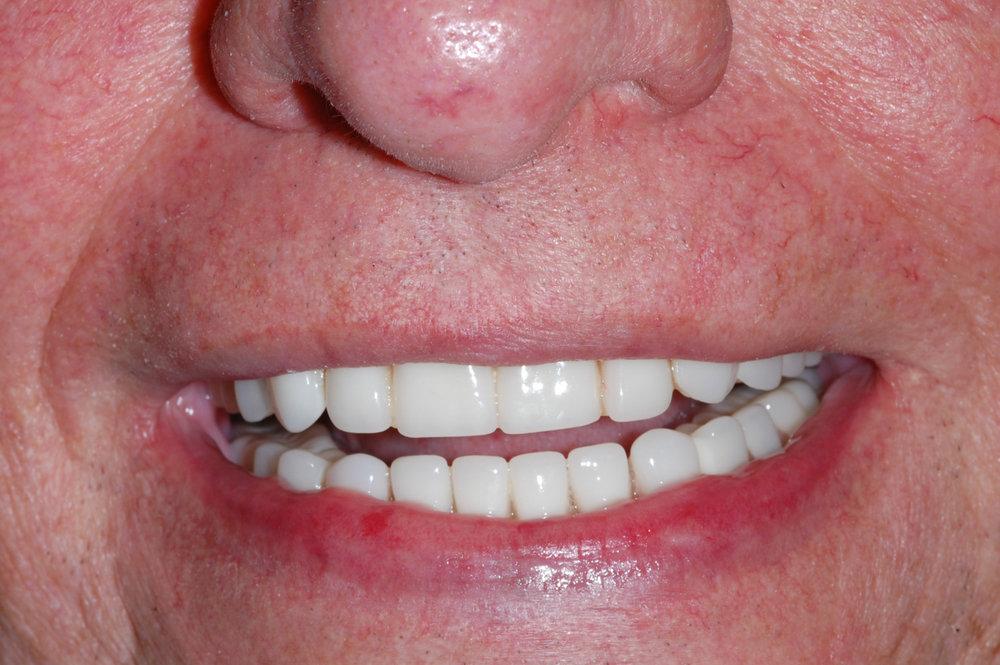 implant overdenture-10.jpg