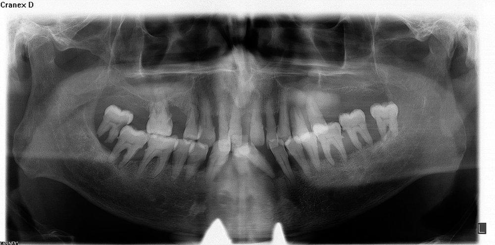 Pre X-Ray