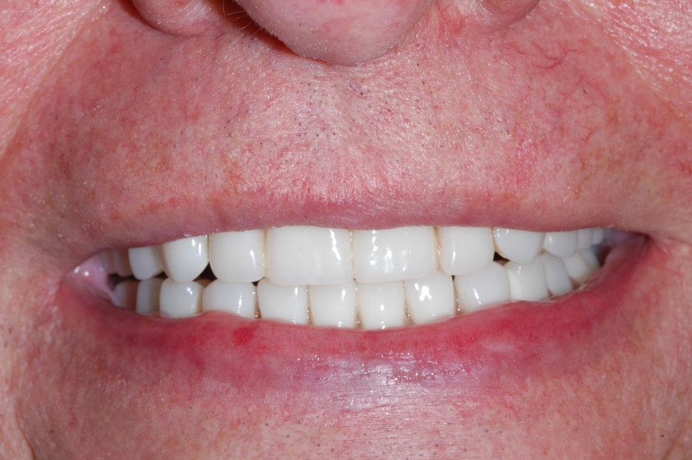 Terminal Dentition Advanced Periodontic Disease